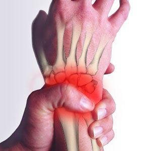 錯姿勢手腕痛 簡易伸展運動有幫助