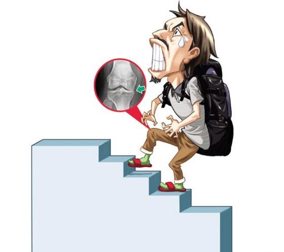 爬樓梯膝蓋會痛?三原則舒緩關節炎不適!