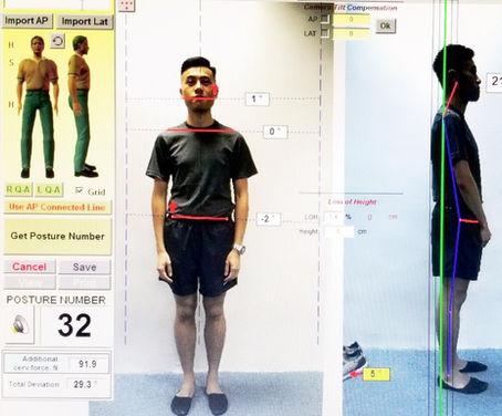 電腦身體姿勢評估 (Posture Pro)