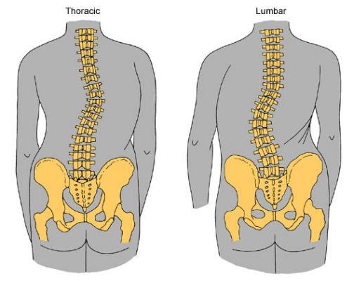 脊骨側彎的治療