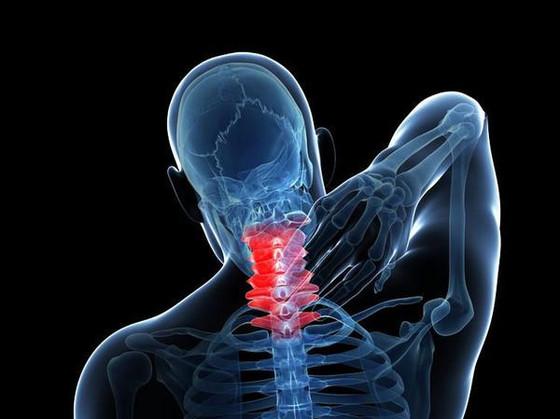 頸部肌筋膜炎你知道是什麼嗎?