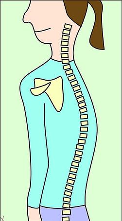 習慣蹺手 坐姿前傾 寒背可致肩周炎
