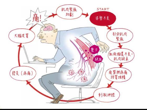 腰背肌筋膜炎響警號!上班族要注意多做伸展動作,避免長時間作[定格]姿勢!