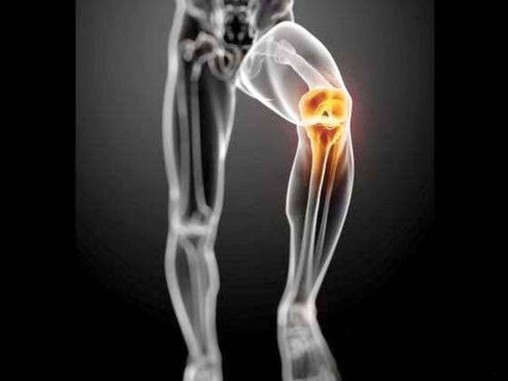 缺乏運動可導致關節炎!