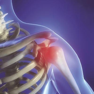「肩周炎」之伸展運動治療法