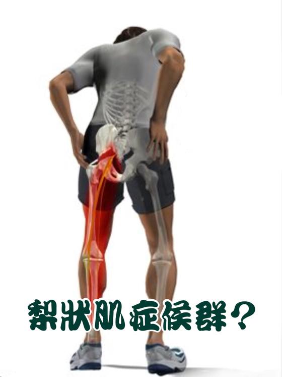 坐骨神經痛可能跟臀部肌肉有關!有無聽過梨狀肌症候群?怎樣可以緩疼痛解腰痠?