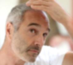 hair-loss-bahiaballena.jpeg