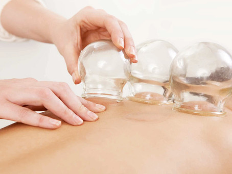 What is Cupping Massage? (Or, whoa, what are those marks on your back?)