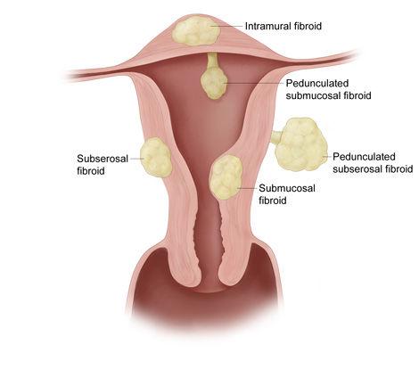 fibroids_types.jpg