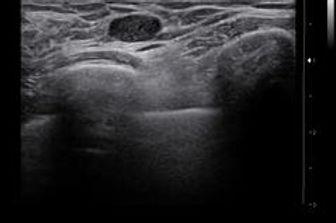 Молочная железа.jpg