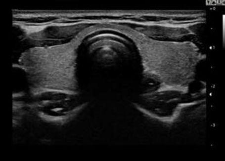 щитовидная железа.jpg