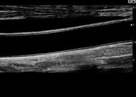 Сонная артерия.jpg