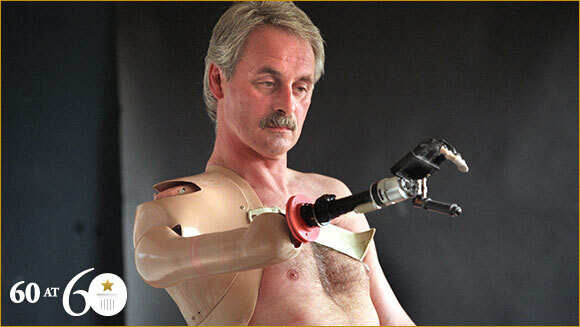 Robert Campbell Aird featured in the Guinness World Records for being fitted with the first bionic arm.