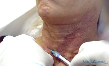 trattamento anti rughe sul collo donna, trattamento idrossiapatite di calcio, ringiovanimento collo, trattamento anti age