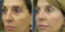rughe volto donna, trattamento ialuronico, lifting viso con ialuronico