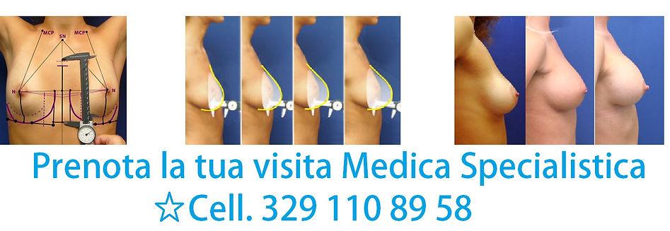 mastoplastica additiva, aumento del seno, Chirurgo Estetico Viareggio Pisa Lucca La Spezia Firenze Dott. Emilio Betti