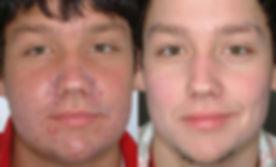 acne sul volto ragazzo