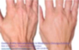 ringiovanimento delle mani con ialuronico, dott. emilio betti