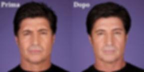 botulino donna, botox uomo, rughe uomo, rughe fronte, botulino fronte, botox fronte