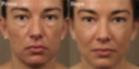 blefaroplastica, blefaroplastica viareggio, blefaroplastica lucca, blefaroplastica donna, chirurgia delle palpebre