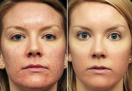 acne sul volto donna