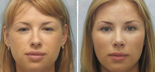 volto donna, rimodellamento zigomi donna, rimodellamento volto donna, trattamento idrossiapatite di calcio, filler, trattamento anti age, elimina rughe sul volto donna