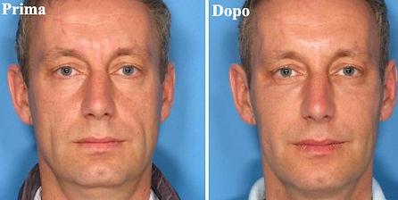 trattamento ialuronico viso uomo