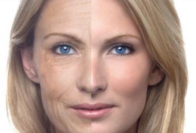 laser frazionale per rughe, cicatrici e per il ringiovanimento della pelle