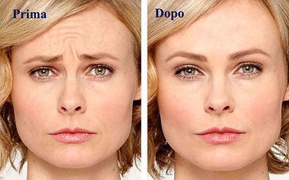 botulino donna, botox donna, rughe donna, rughe fronte, botulino fronte, botox fronte