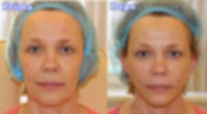 volto donna prima dopo lifting con i fili