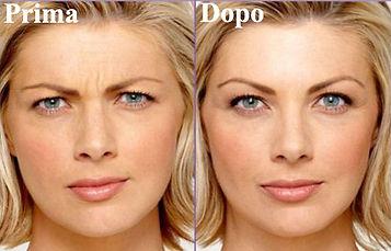 botulino donna, botox donna, rughe fronte donna, elimina rughe fronte donna