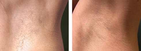 depilazione laser definitiva con il miglior laser al mondo dermatologo Dott. Emilio Betti