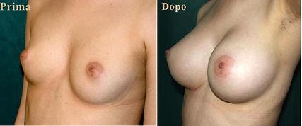 mastoplastica additiva la chirurgia estetica del seno con risultati naturali in piena sicurezza con il proprio grasso o con protesi, Tecnica del Dott. Emilio Betti