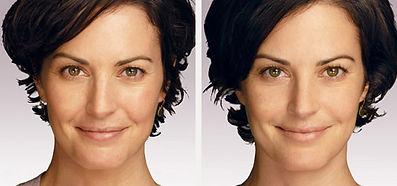 rimodellamento volto donna, trattamento idrossiapatite di calcio, rimodellamento zigomi donna, ringiovanimento volto donna, trattamento anti age