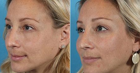 volto donna, rimodellamento zigomi donna, rimodellamento volto donna, trattamento idrossiapatite di calcio, ringiovanimento volto, trattamento anti age