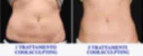 elimina il grasso, distruggi il grasso, coolsculpting Italia, coolsculpting viareggio, medicina estetica viareggio