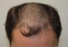 Trapianto di capelli monobulbare prima Dott. Emilio Betti La Spezia