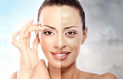 micro-peeling sul volto di una donna cura acne