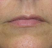 aumento labbra con acido ialuronico senza eccessi