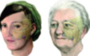 Invecchiamento dei compartimenti di grasso del volto: porta ad una diminuzione e a uno spostamento verso il basso dei compartimenti di grasso e quindi allo spostamento dei volumi del volto verso il basso. Una diminuzione dell'estensione del grasso della bocca aggrava ancora la migrazione verso il basso del grasso delle guance e del grasso che sta sotto ai muscoli che circondano l'occhio.