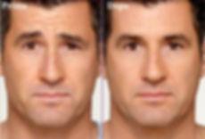 botulino uomo, botox uomo, rughe uomo, rughe fronte, botulino fronte, botox fronte