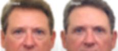 chirurgia estetica della palbebra, blefaroplastica uomo, blefaroplastica, blefaroplastica viareggio, blefaroplastica lucca, dermoestetica italiana, medicina estetica viareggio, dott. emilio betti