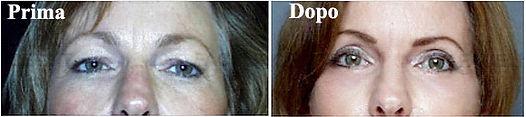 chirurgia estetica della palbebra, blefaroplastica donna, blefaroplastica, blefaroplastica viareggio, blefaroplastica lucca, dermoestetica italiana, medicina estetica viareggio, dott. emilio betti