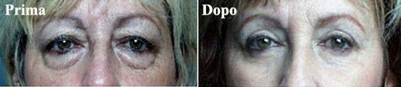 chirurigia delle palpebre, chirurgia delle palpebre viareggio, blefaroplastica, blefaroplastica donna, blefaroplstica viareggio, dermoestetica italiana, dott. emilio betti