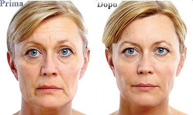 trattamento ialuronico volto donna