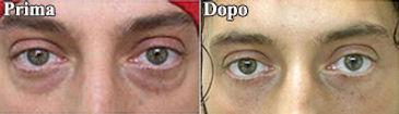 blefaroplastica inferiore, blefaroplastica uomo, blefaroplastica viareggio, blefaroplastica lucca, dott. emilio betti, dermoestetica italiana, medicina estetica viareggio