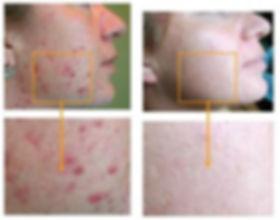 acne sul viso donna