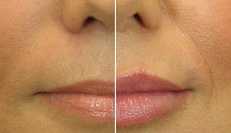 labbra donna, rimodellamento labbra con ialuronico, ialuronico, aumento volume labbra, aumento labbra con ialuronico