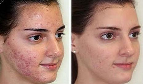 acne sul volto ragazza