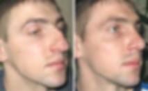 rinoplastica, chirurgia estetica del naso, rinoplastica uomo, rinoplastica viareggio, rinoplastica lucca, dermoestetica italiana, dott. emilio betti, medicina e chirurgia estetica viareggio